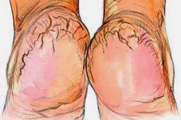 Some Of The Best Home Remedies For Cracked Heels