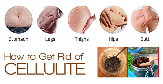 How to Get Rid of Cellulite Permanently