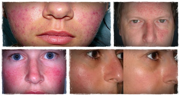 20 Effective Home Remedies For Rosacea