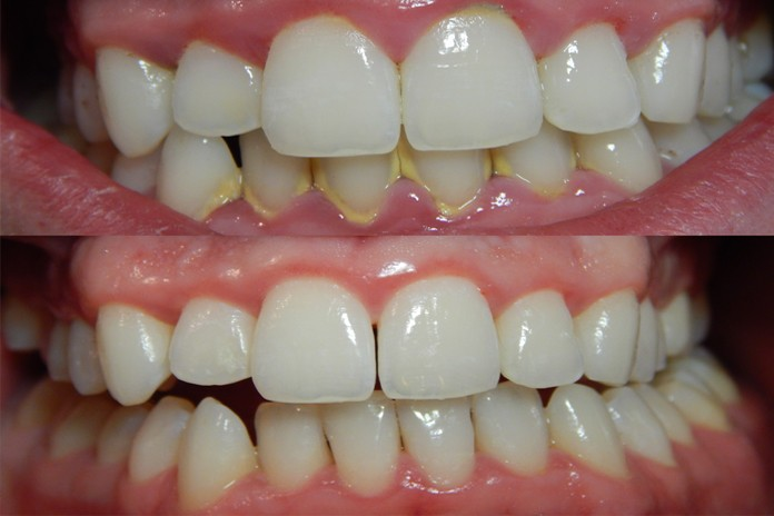 Chew on This Amazing Root to Melt Away Plaque and Prevent Cavities
