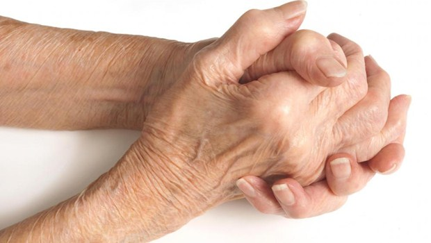 Ideal Home Remedies to try for Arthritis in Hands