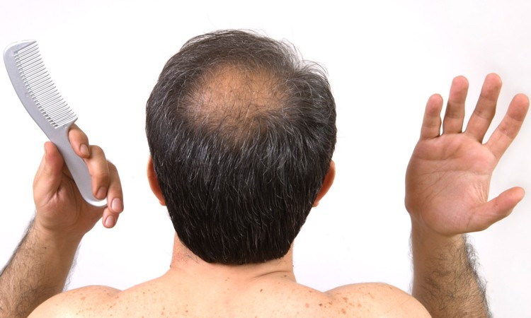 8 Top Home Herbal Remedies for Baldness