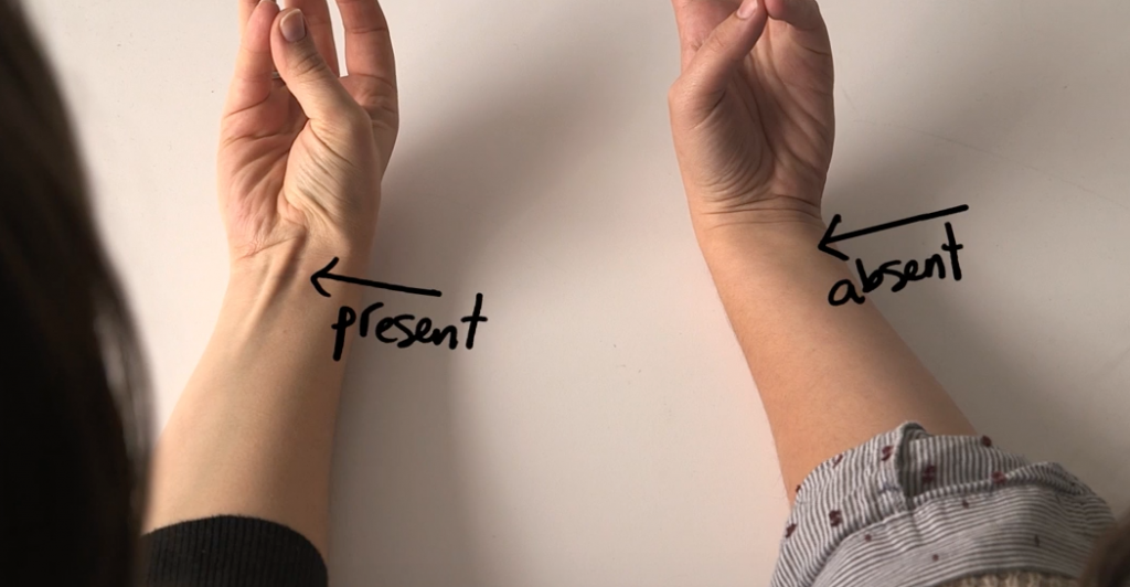 DOES YOUR TENDON PROTRUDE OUT OF YOUR WRIST LIKE THAT. THIS IS WHAT IT MEANS…