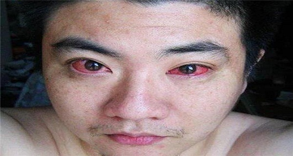 MAN DIAGNOSED WITH EYE CANCER BECAUSE OF DOING THIS AT NIGHT!