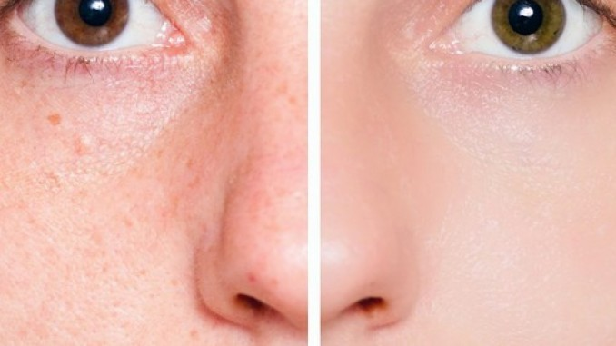 This Is the Only Ingredient You Will Need to Shrink Your Pores